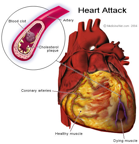 a diagram that shows how a blood clot can cause a heart attack